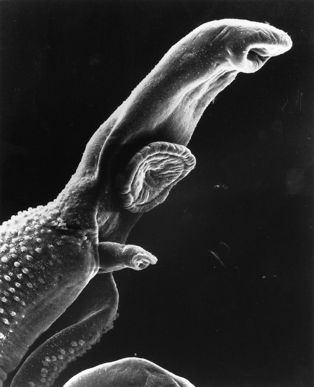 parazita bilharzia
