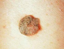hólyag szövettani papilloma humán papillomavírus elleni vakcina emedicin