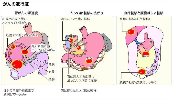 az emberi férgek gyógyszereinek áttekintése