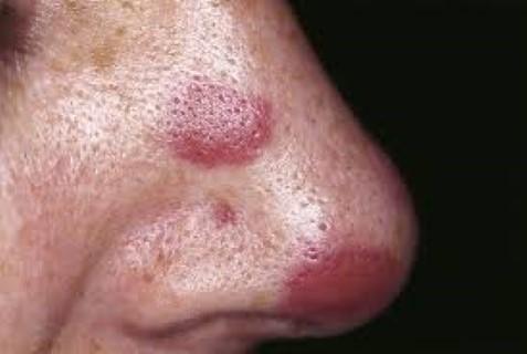fenyőférgek a serdülőkori tünetekben