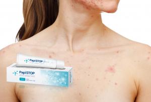 a paraziták kezelésének hatása humán papillomavírusok hpv)