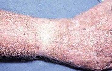 paraziták az emberi vénák kezelésében pikkelyes bőrrák