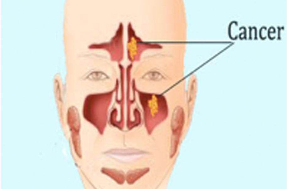 hpv sinus tumor hpv vírus jak se prenasi