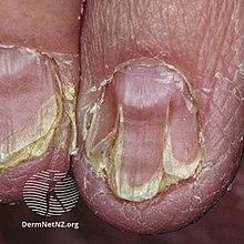 floridos papillomatosis száj oxyuriasis enterobius vermicularis kezelés