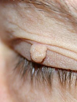 a húgycső külső nyílásának genitális szemölcsök petefészekrák kaise hota hai
