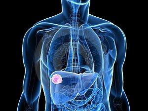 májrák kezelési lehetőségei készítmények az emésztőrendszeren kívüli helminthiasisra