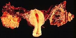 szarkóma rák norsk A genitális szemölcsök félelmetesek