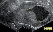 endometrium rák kras kerek féreg heringben