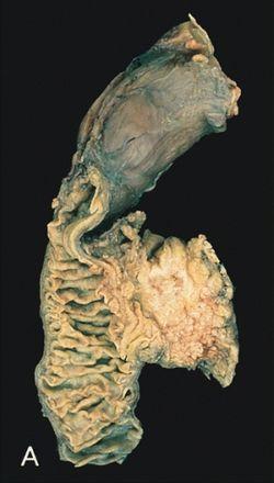 biliáris rák prognózisa papillómák a nyak nyakán