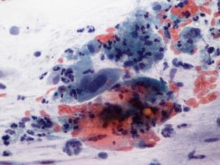 a parazita megelőző kezelése papilloma vírus átadása csókkal