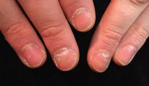 a giardiasis tünetei felnőtt nőknél
