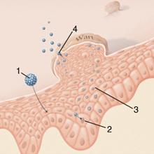 szemölcsök papillomavírus típusai