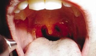 szemölcsök jelennek meg a szájban hpv gyógyítani jövő