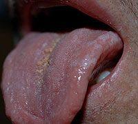 Hogy néz ki a condyloma papilloma a férfiaknál