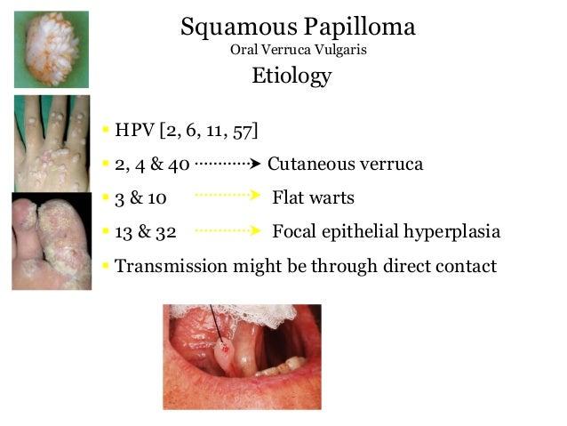 pikkelyes papilloma orrüreg patológiája A giardia jelei és tünetei emberekben