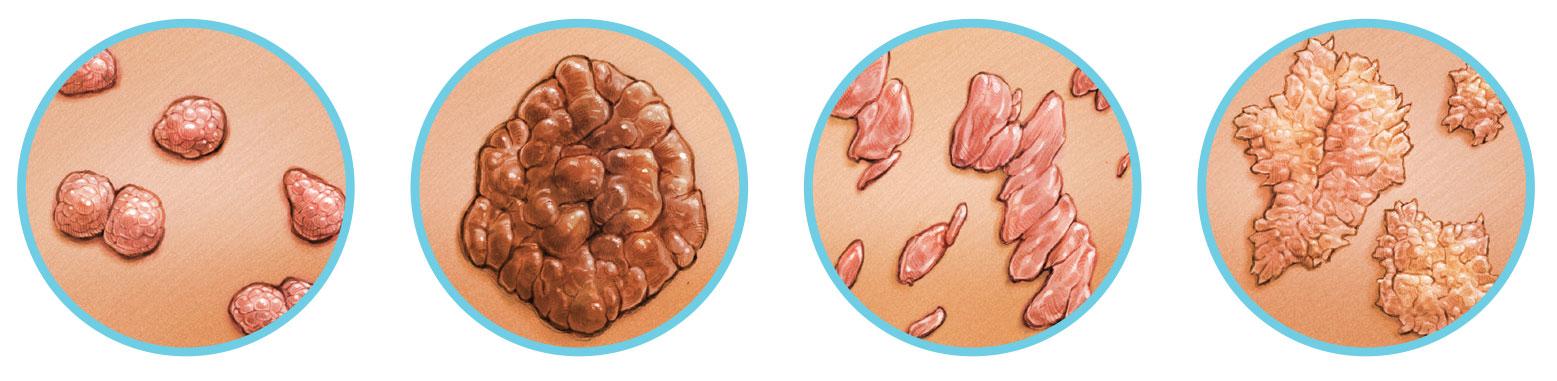 a genitális szemölcsök fertőzése a helminták és paraziták kezelésének folyamata