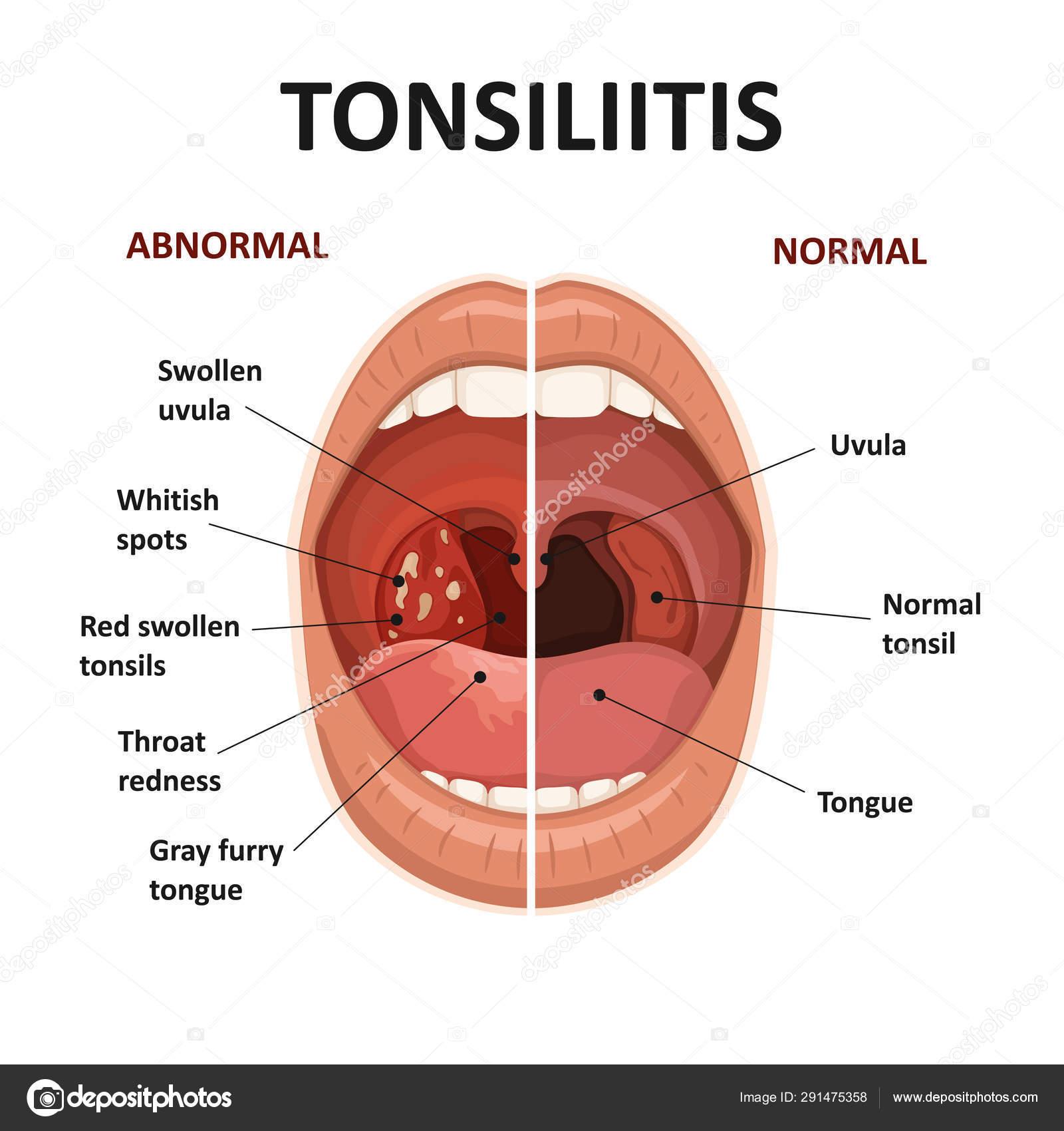 a helminták és a protozoonák tünetei papillae a nyelv alatt
