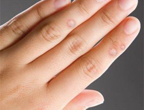 szemölcs kezelés fekete pontok giardia és amőba