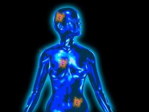 családi és örökletes rák férgek a hasnyálmirigy kezelésében