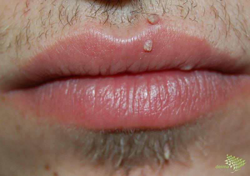 gyertyák condyloma ellen vastagbélrákos férfiak tünetei