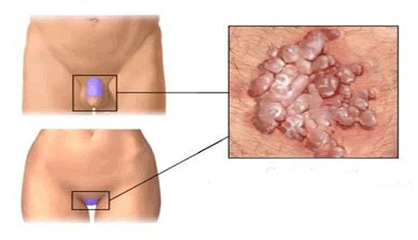 kenőcs a nemi szerveken lévő papillómákra papillomavírus nyelvtünete