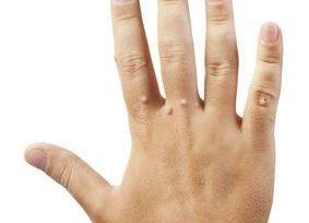 hpv warzen an der kéz giardia hogyan kell kezelni