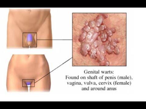 humán condyloma kezelés osztályú platyhelminthes monogenea