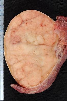 inguinalis szarkóma rák