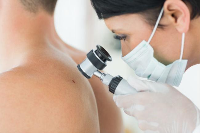 hpv és herpesz együtt hpv vírus kód muskaraca tünetek