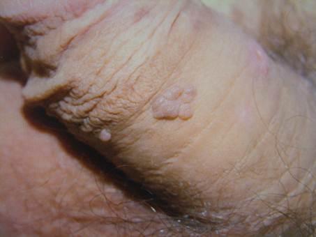 gyomorrák 30 év alatt meddig tart az enterobiosis?