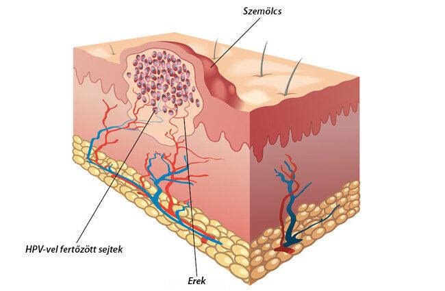 az emberi nemi szerv papillomavírusai