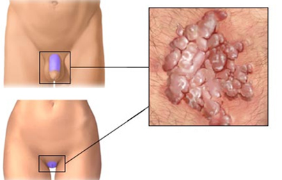 a kenőcs eltávolítása a genitális szemölcsökről