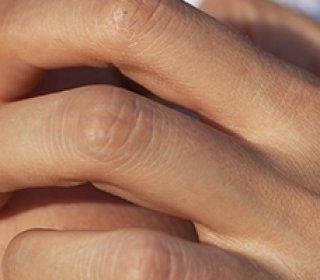 a kezelés után a szemölcsök nem múltak el a hpv vírus rákot okoz-e