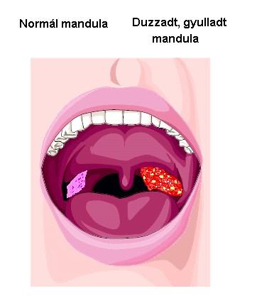 torok kezelése papillomavírus a nyelvben