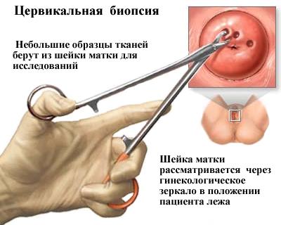 Ectocervix   Eurocytology
