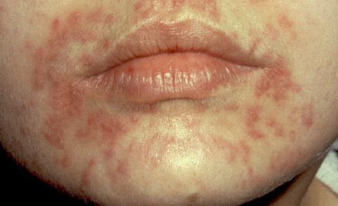 veszélyes papillómák vannak az arcon condilom e-vitamin