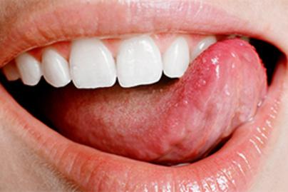 hpv száj okozza férgek egy gyermekben