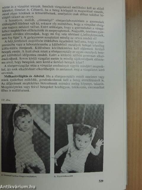 bélparazitózis gyermekek kezelésében