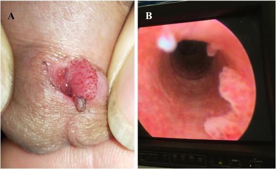a pinwormok szaporodnak szemölcsök a mellbimbón
