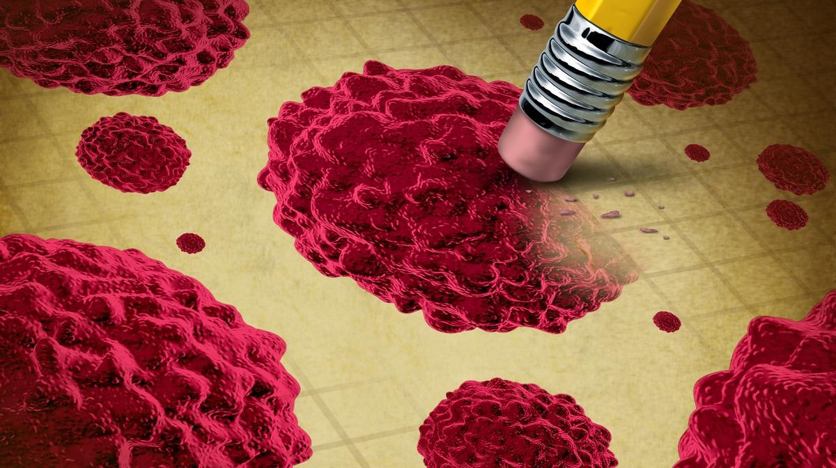A HPV-t kezelik vagy sem hány emberi papillomavírus
