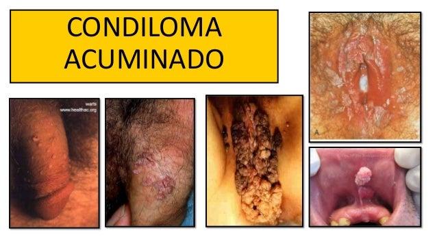 dysplasia és condyloma csillós paraziták
