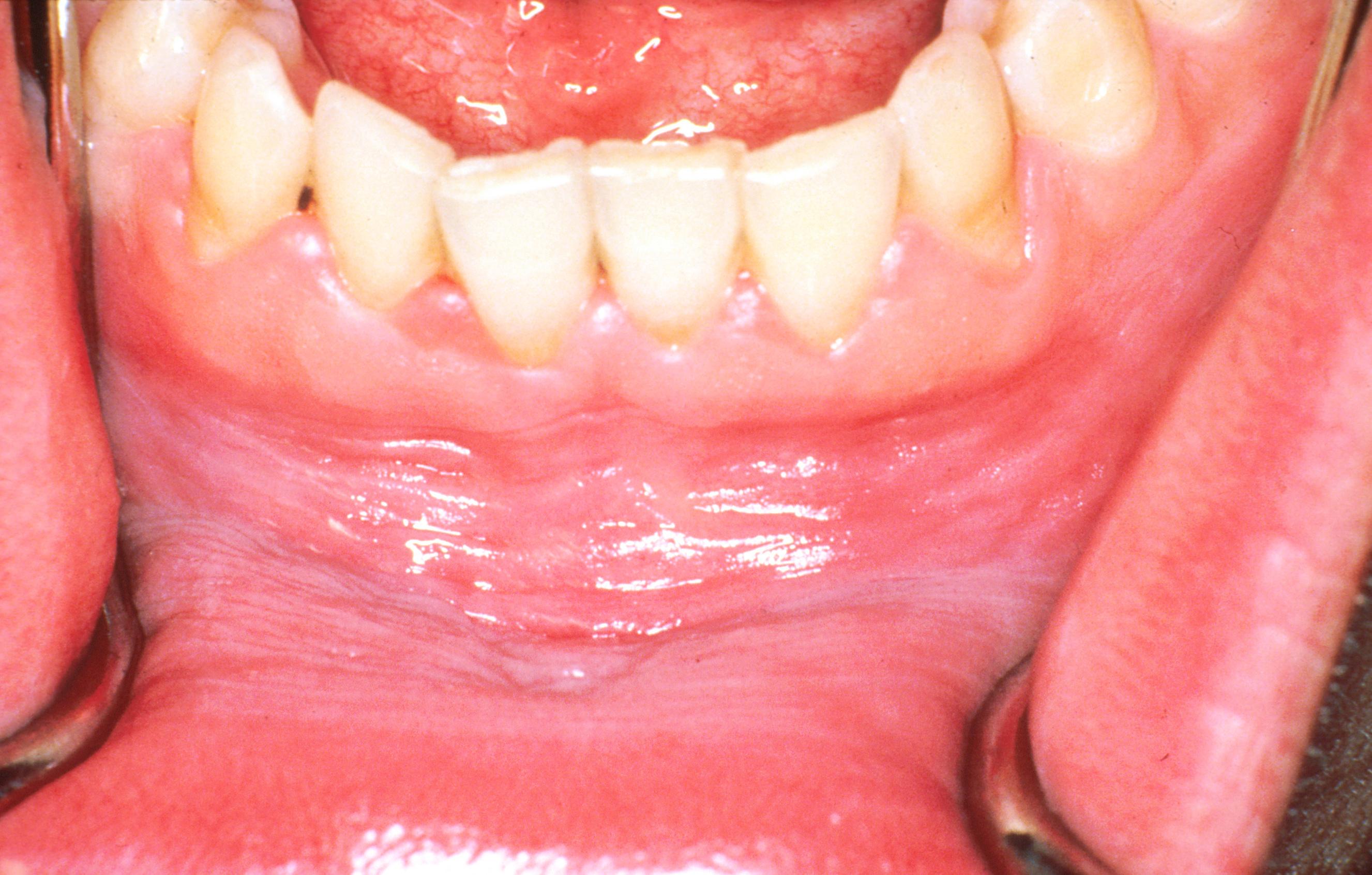 Több nyaki papilloma okai és kezelése hpv magas kockázatú típus