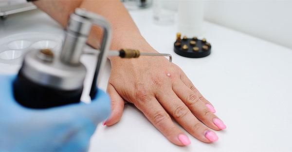 májrák kezelési lehetőségei ágyéki papillómák férfiaknál