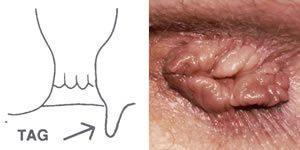 condyloma a végbélnyílás körül kenőcsök a nemi szemölcsök kezelésére nőknél