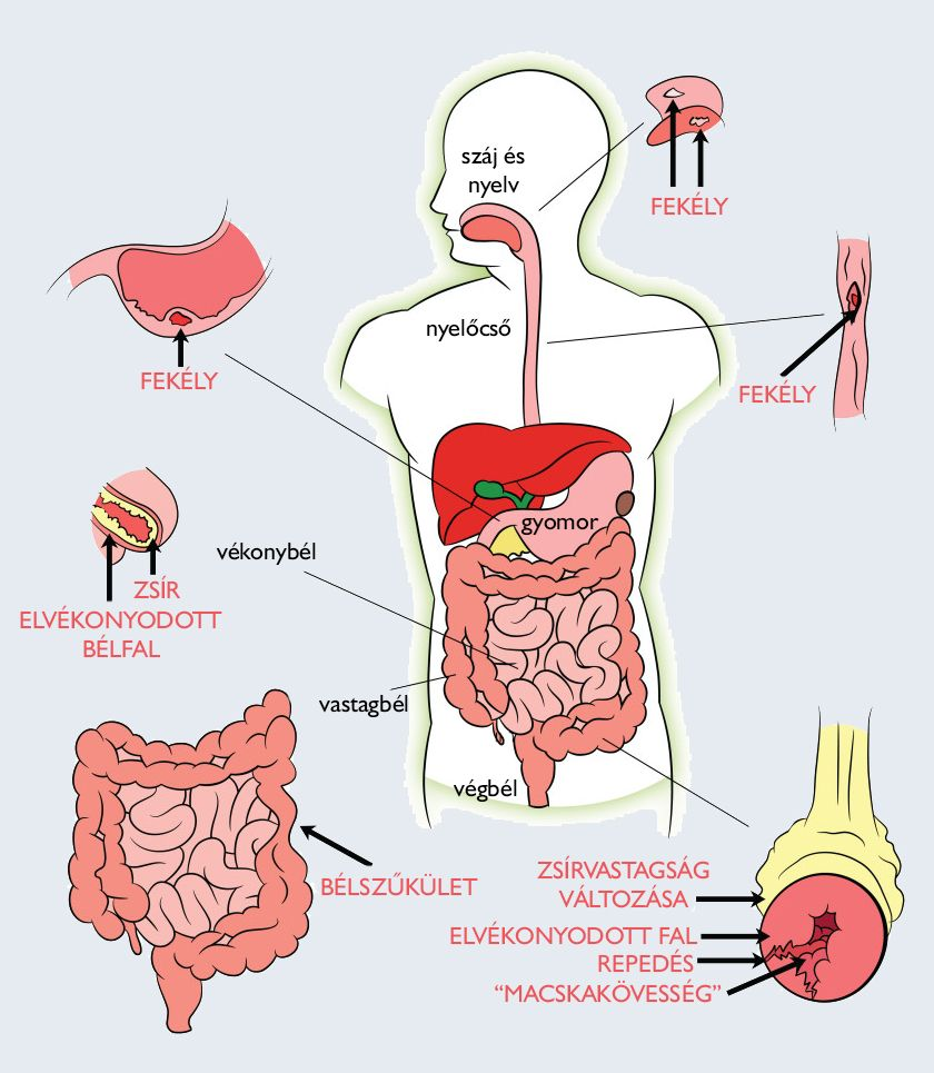 az emberi test bélparazitáinak gyógyszere