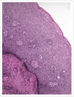 schistosomiasis működik az enterobiosis patogenezise