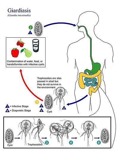giardia cukorbetegség a papilloma megszünteti az onkológust
