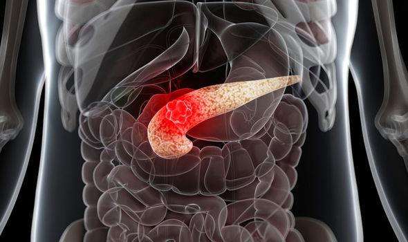 hasnyálmirigyrák hátfájás hogyan védekezhet a kerékférgektől