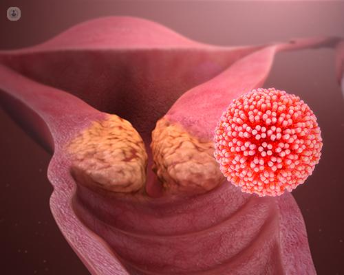 papilloma vakcina vírus visszahívása condyloma hyperkeratosis