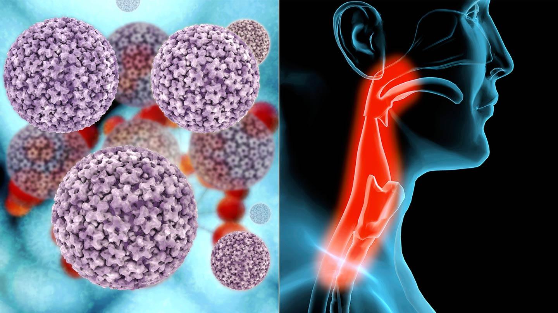 hpv és gi rák amelyek rákkeltő szemölcsök